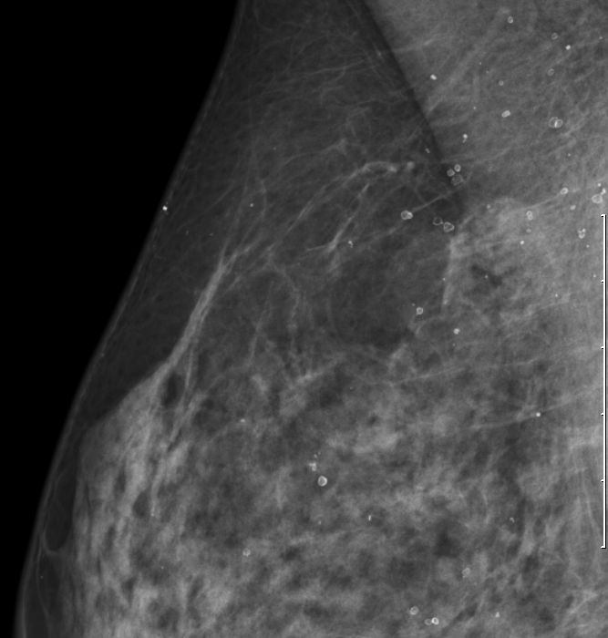 T3 invasives duktales Karzinom der Brust