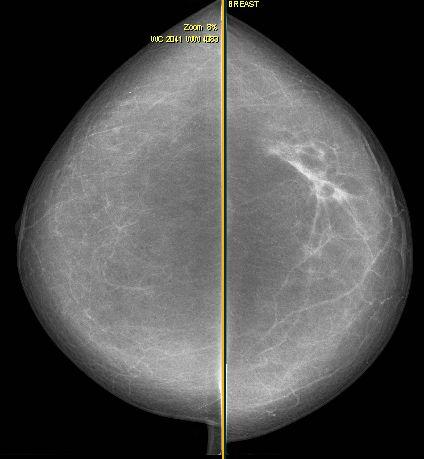 Was sind invasive Tumoren? Brustkrebs